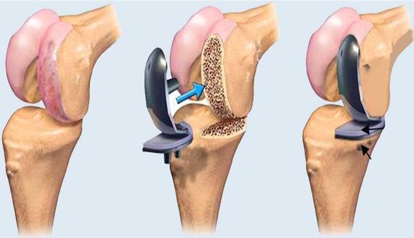 orthopedic hospital doctor surgeon Ghaziabad delhi