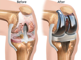 kneed replacement surgery